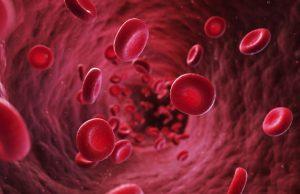 Hal hal Yang Menjadi Penyebab Penyakit Anemia