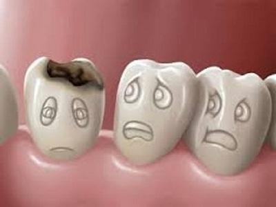 Hal – Hal yang Dapat Membuat Gigi Rusak