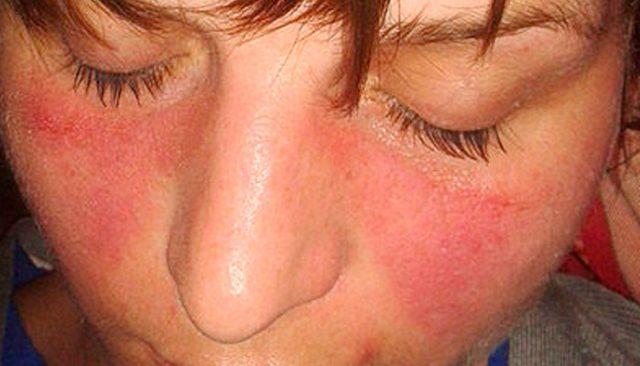 5 Kondisi Orang Yang Berisiko Besar Untuk Terkena Lupus